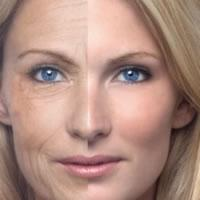 What Are Phytoceramides