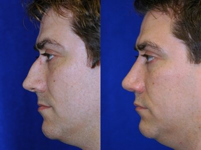 Rhinoplasty for Men