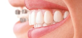 Five Tips To Enhance Your Oral Health