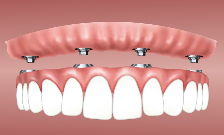 Things You Should Know About Dental Implants